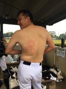 背中に、見事に3つの死球の跡が(あと1つは腕への死球です。)